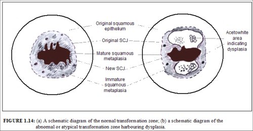 Colposcopy and treatment of cervical intraepithelial ...