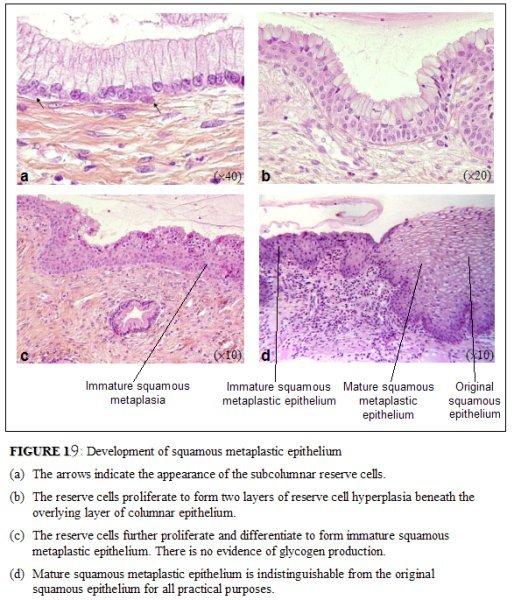 Cervix Transformation Zone Histology