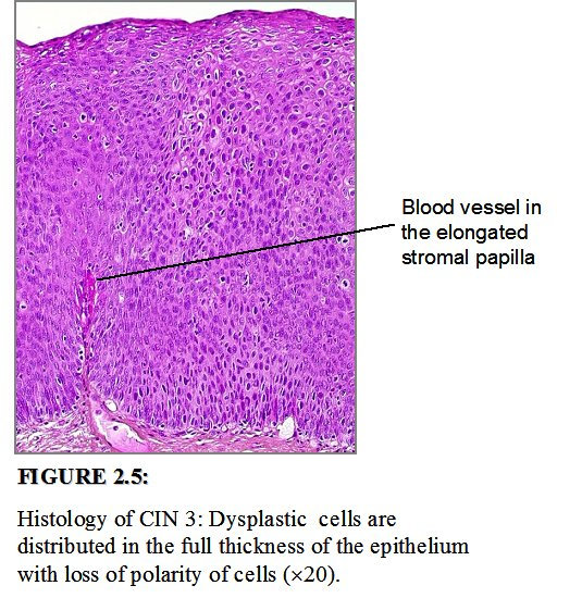 humán papillomavírus cin 3