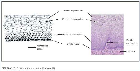 La colposcopia y el tratamiento de la neoplasia intraepitelial ...