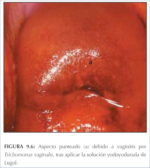 Vaginal Edema