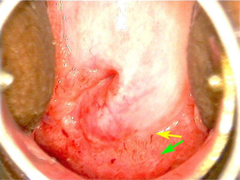 Ce este condilomul exofitic al uterului