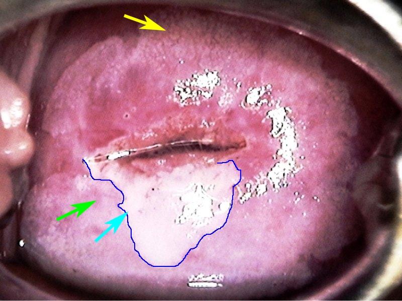 condylom kolposzkópia
