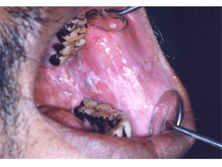 Uterus  Endometroid intraepithelial neoplasia EIN  Atypical endometrial hyperplasia