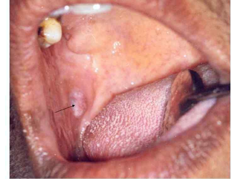fibroepithelial papilloma def)