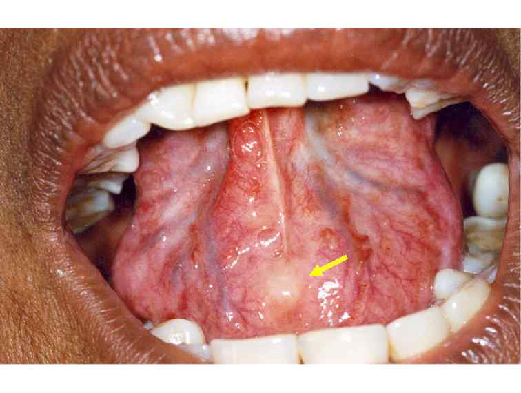 A digital manual for the early diagnosis of oral neoplasia for Floor of mouth cancer