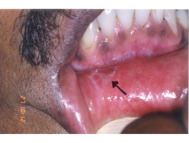 Recognizing common vulvar lesions | Vulvar Care
