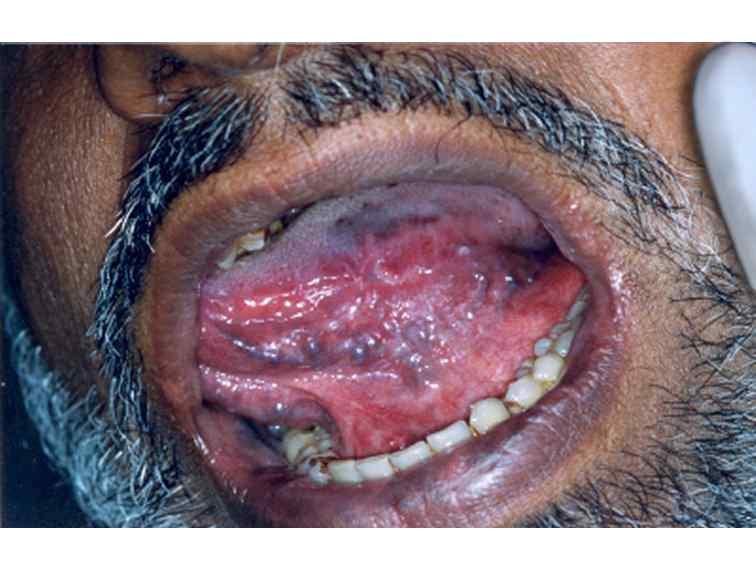Developmental disorders of tongue elvis chiramel david