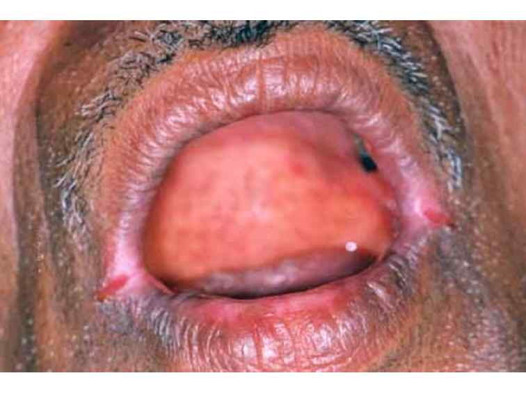 what helps cold sores go away definition