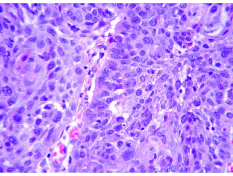 squamous cell carcinoma research paper