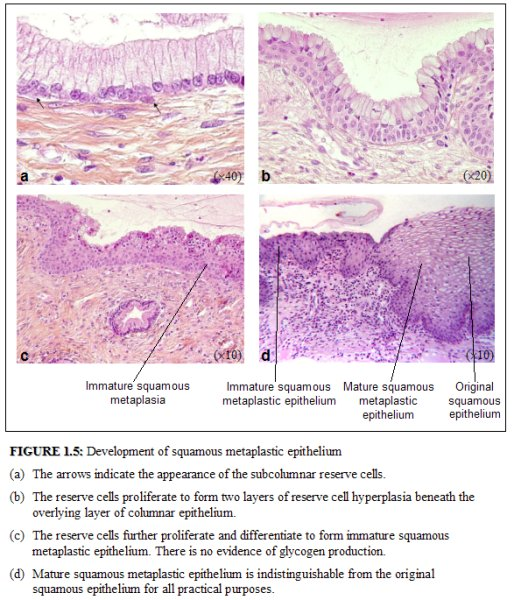 fig 1.5: Development of squamous metaplastic epithelium