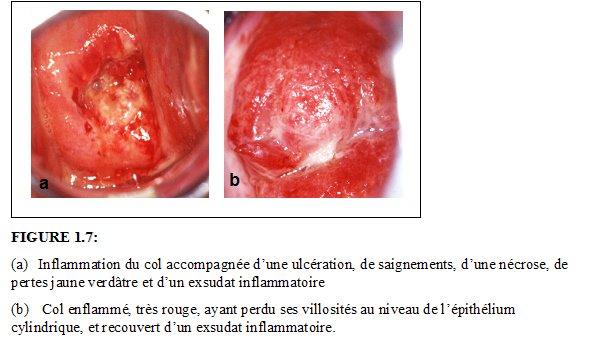 conisation du col de l'utérus video