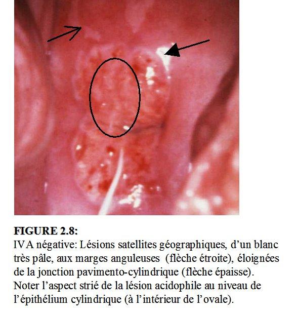 Analyse et compte rendu des r sultats de l inspection for L interieur du vagin