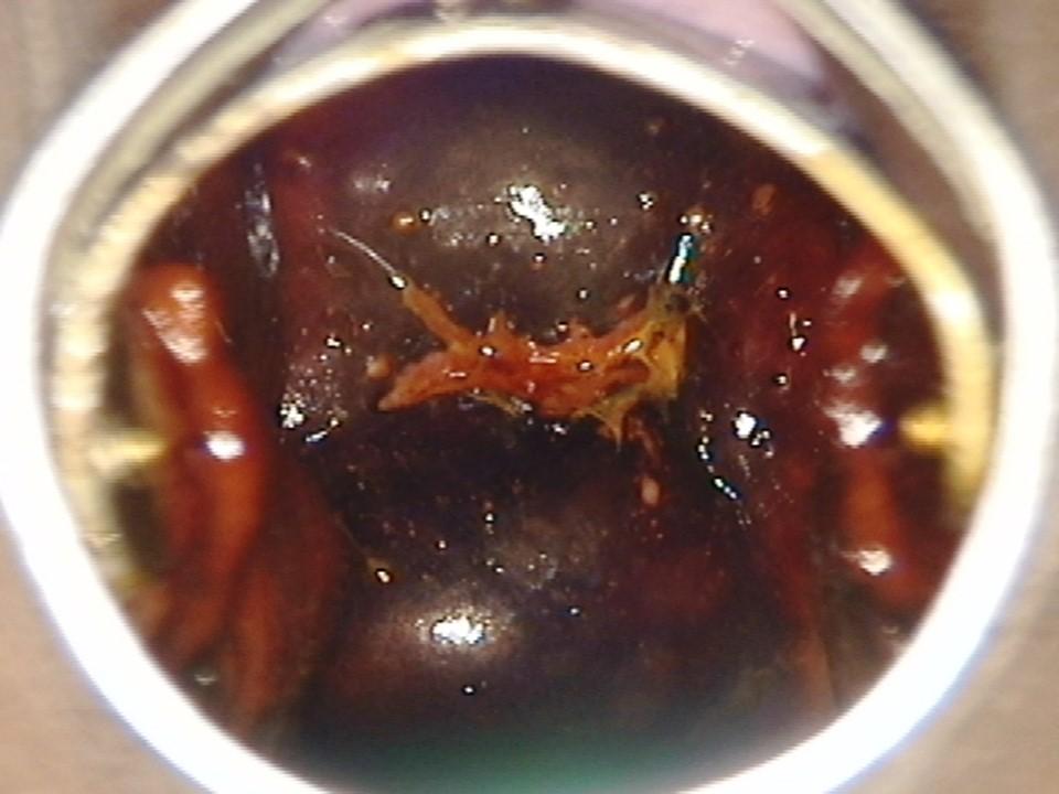 condoloma lugol teszt papilloma a végbélnyíláson belül
